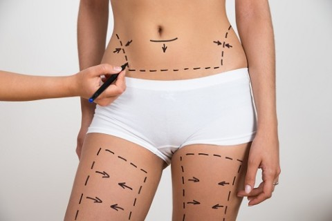 Person Hand Drawing Lines On Woman's Abdomen And Leg For Abdominal Cellulite Correction